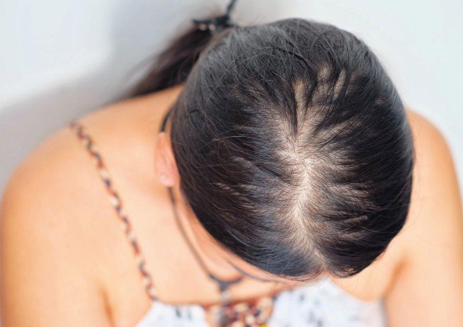 Katrina Horman - Female Hair Loss