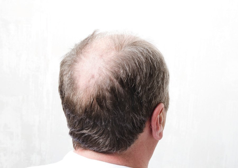 Katrina Horman - Male Hair Loss